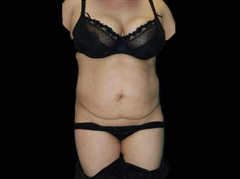 Tummy-Tuck-after-45-54-year-old-woman-front-before