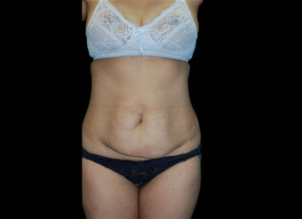 35-44-Tummy-Tuck-before-front